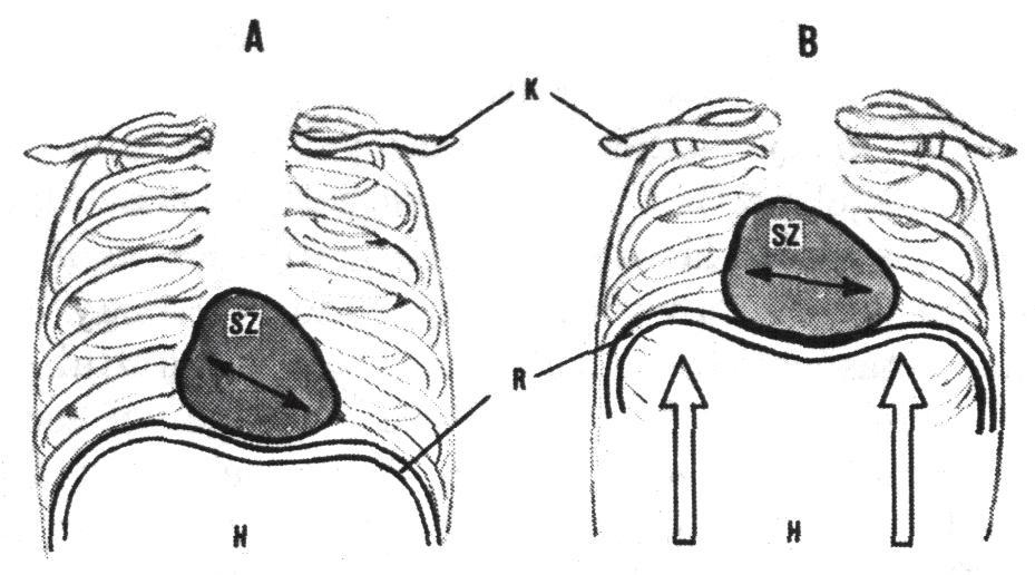a bokaízület posztraumás artrózisa 4 fokkal