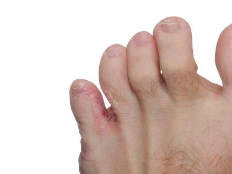krémes gomba lábujjak között