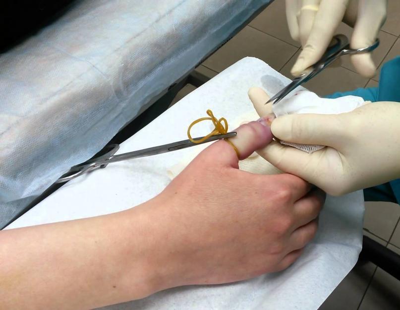 hogyan lehet gyógyítani az ujjgyulladást)
