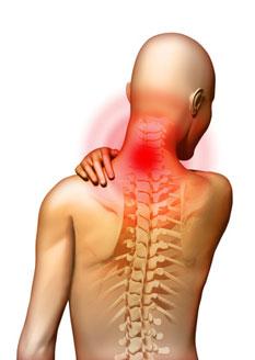 Égő fejben a nyaki osteochondrosis. - Csukló