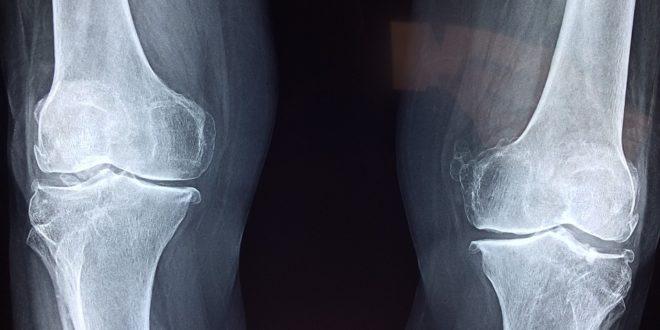 ban ben. git kezelése az ujjak artrózisa