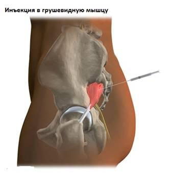 ízületi plazmolifting kezelési áttekintések fájdalom a combnyak ízületeiben