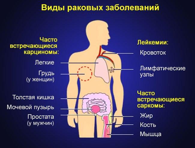 gerincvelő artrózisa, ha nem kezelik