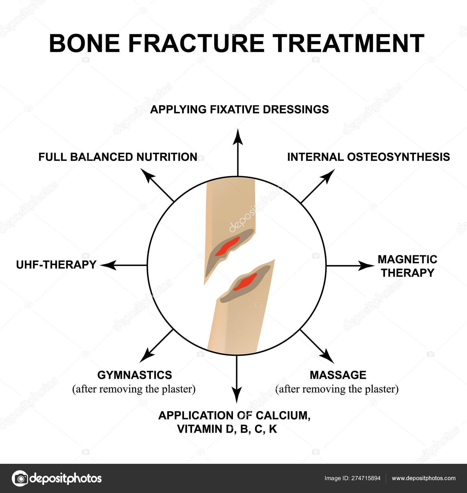 git artrosis kezelése chondroprotektorok kezelése artrózis esetén