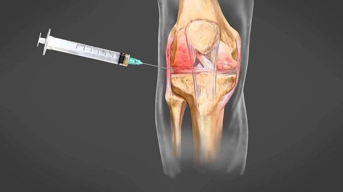 gyulladás a térd artrózisával)