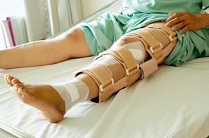 csípőízület coxarthrosis vagy arthrosis kezelése ha a térd ízületei kenőcsöt fájnak