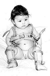 hogyan kezeljük a csípő dysplasia csecsemőknél