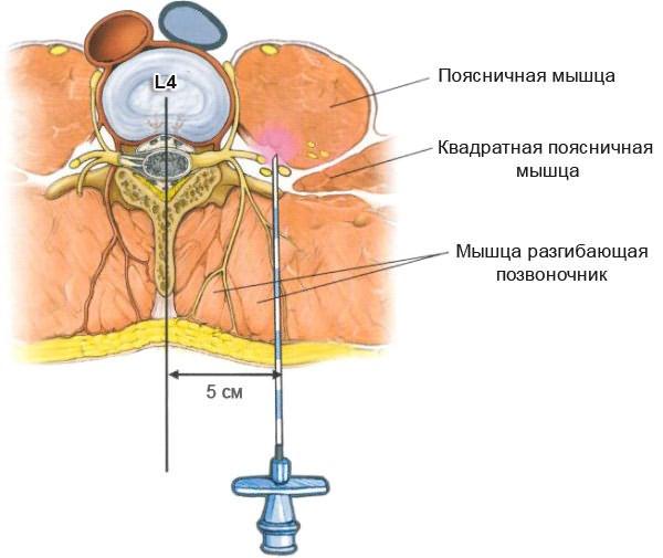 homeopátiás gyógyszer osteochondrosis)