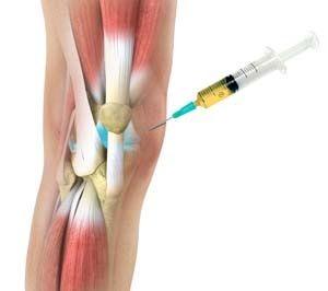 injekció az ízületek fájdalmához