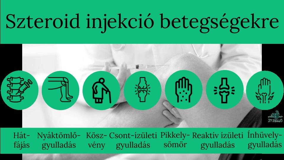 injekciók neve ízületi fájdalomra)