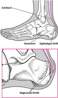 izmok fájdalma a lábak ízületei)