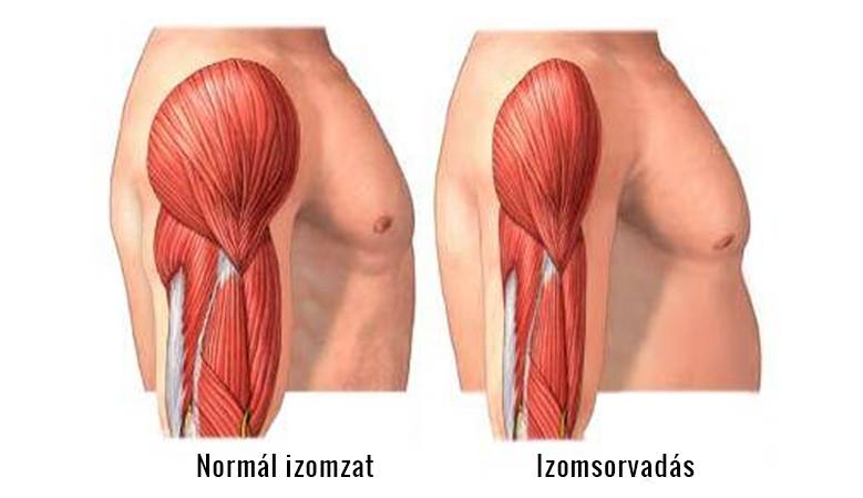 izom- és ízületi fájdalomcsíra)