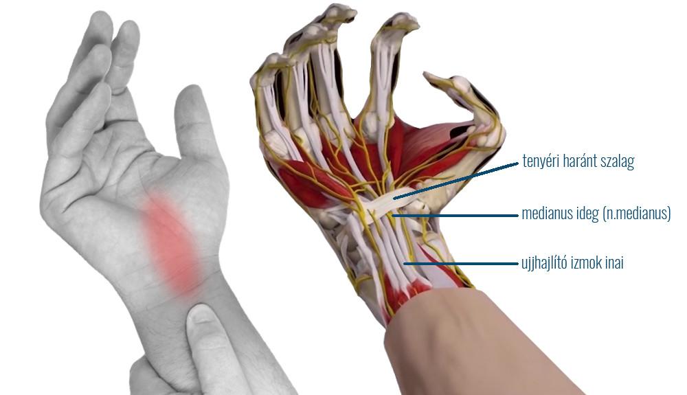 az összes izületi fájdalom a cervicothoracicus gerinckészítmények osteochondroze