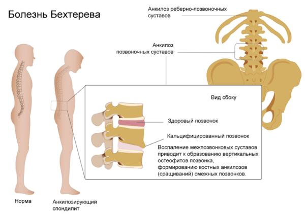 kábítószer az ágyéki osteokondrozis blokádjához