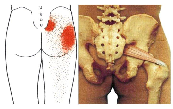 kenőcsök, amelyek enyhítik az izomgörcsöt nyaki osteochondrozisban)