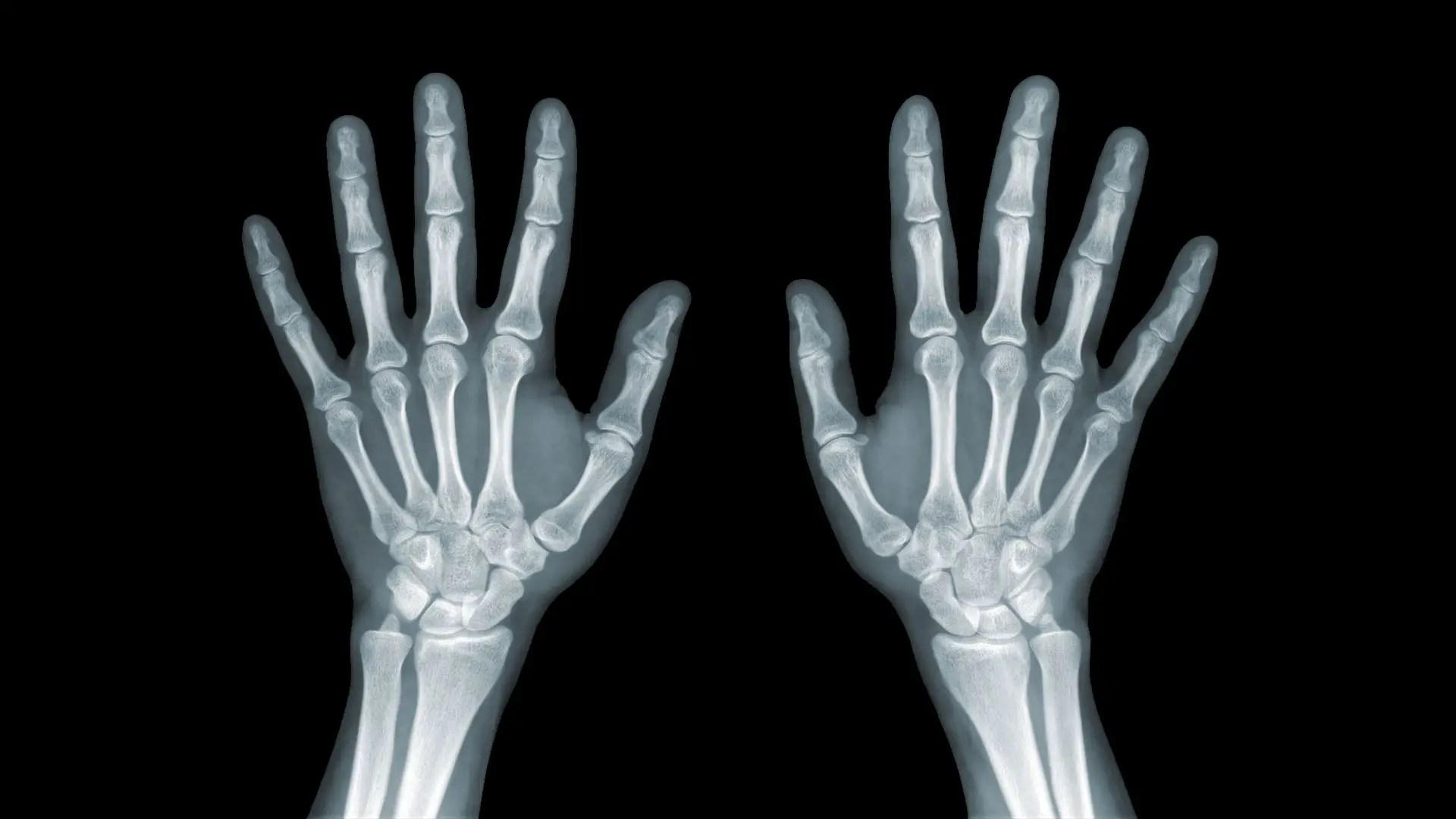 kerülje az ütközéssel járó ízületi sérüléseket a térdízületi fájdalomra melyik orvos