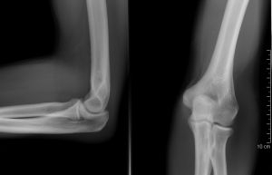 A fájdalom okai és kezelése a jobb kéz könyökcsuklójában