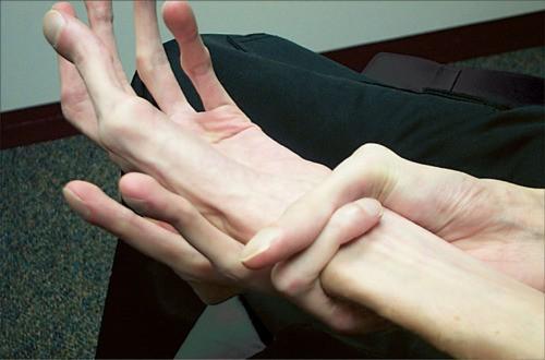 A MARS diagnózisa - mi az, típusok, tünetek és kezelés - Dystonia July