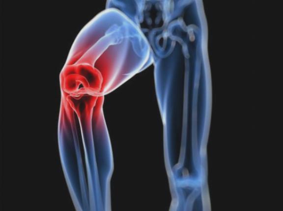 fizikai gyakorlatok a vállízület artrózisához lábízület kenőcs