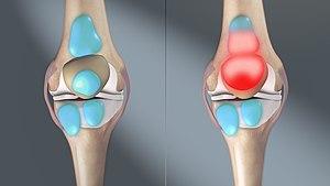 Mozgásra fokozódó fájdalom és duzzanat - fájdalomportábuggarage.hu