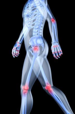 lehetséges az ízületek helyreállítása artrózissal)