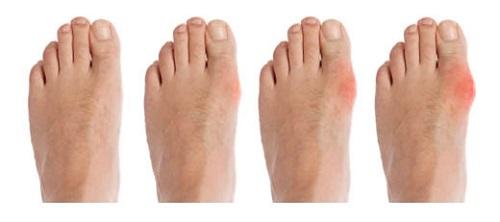 lehetséges-e gyógyítani a bokaízület artrózisát