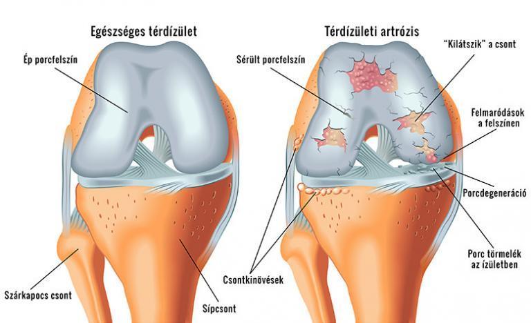 lézer ízületi fájdalom esetén