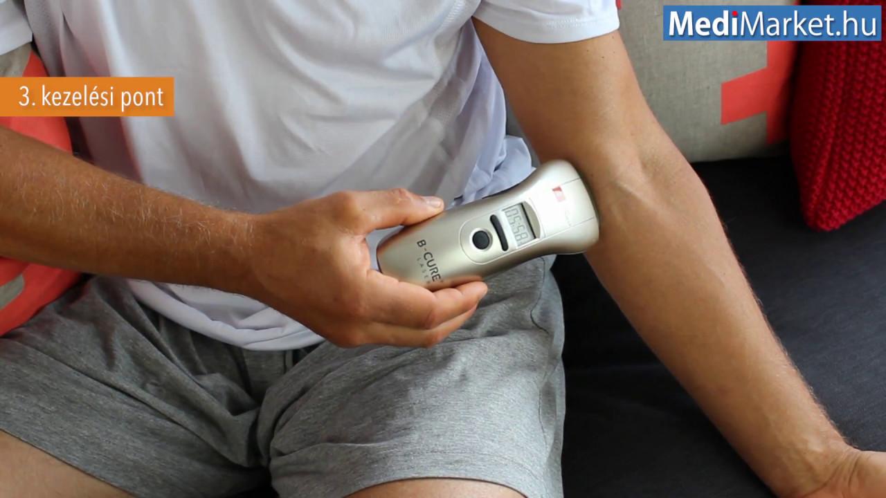 Lágylézer kezelés - Soft Lézer terápia - Lézerterápia Súlypont Ízületklinika