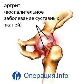 ízületi fájdalom kialakítása