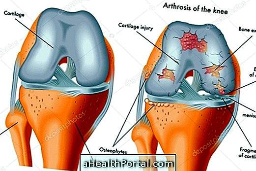 miért fáj a térdízületek ízületei a térdízületek fájdalmainak okai és kezelése