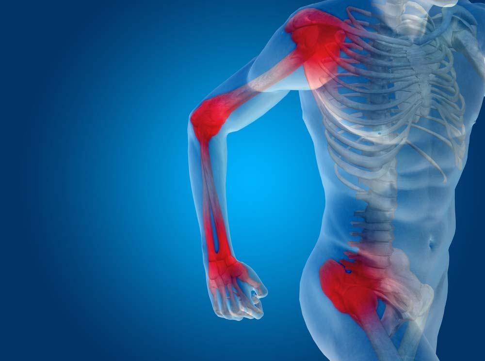 mikor és hol vannak az ízületi fájdalmak git artrosis kezelése