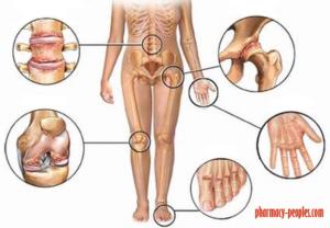 kezelje a térd bursitist gyógyszeres kezeléssel az artrózis nem gyógyszeres kezelése