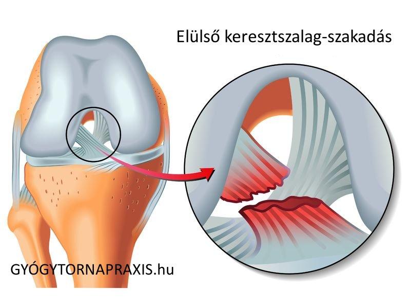 nyomásfájás a térdben sérülés után)