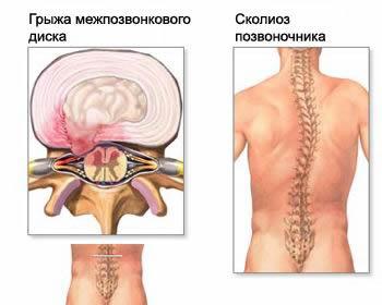 A nyaki osteochondrosis okai, tünetei és kezelése - Nyaki-vállízület osteochondrosis kezelés
