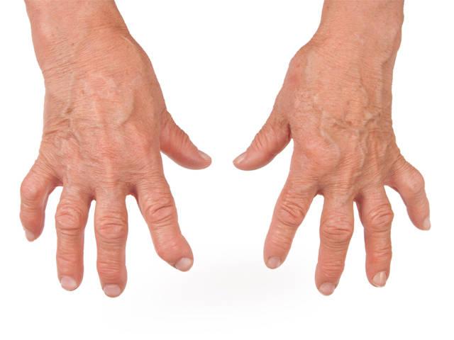 reumatikus ízületi fájdalomkezelés