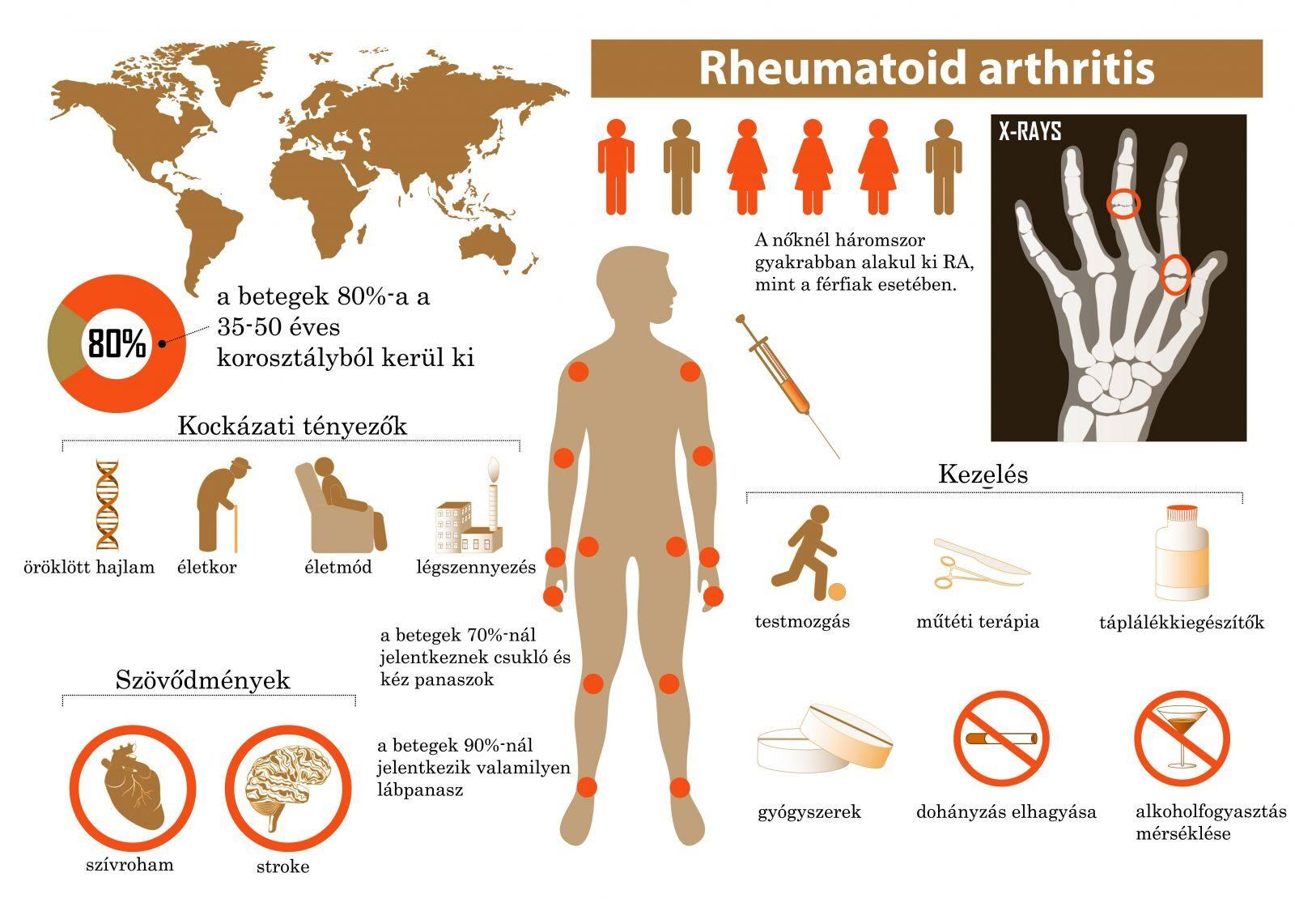 gyakorlatok a bokaízület fájdalmához boka deformáció reumatoid artritiszben