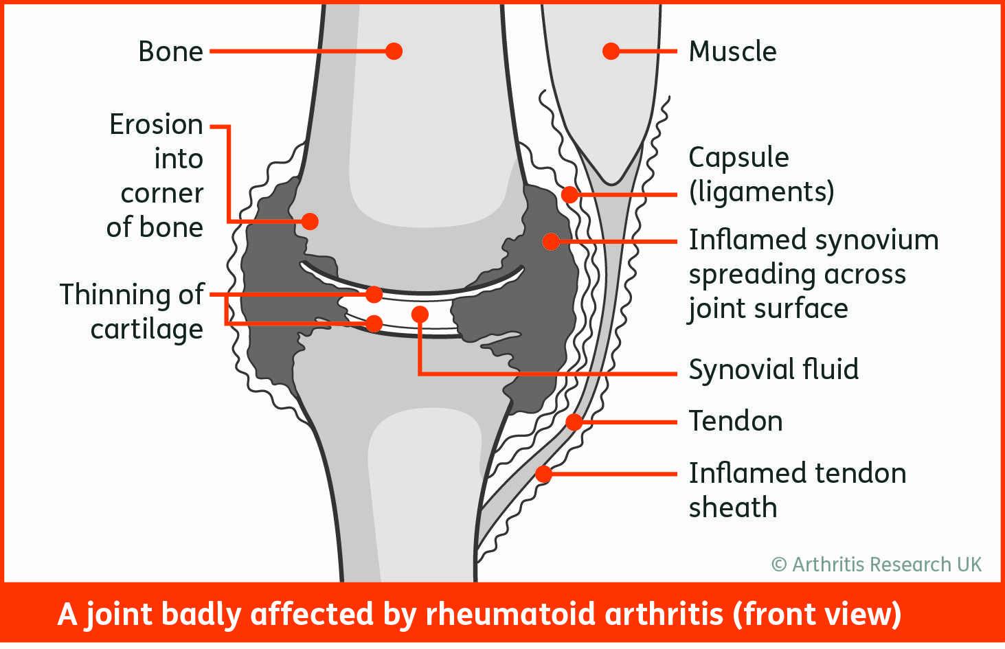 Stages of rheumatoid arthritis Stock fénykép Shutterstock - PuzzlePix
