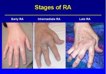 Klinikai vizsgálatok a Rutgers University támogatásával
