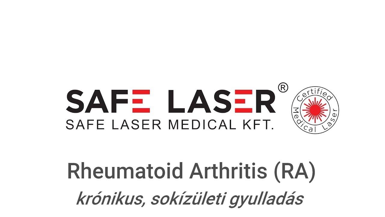 homeopátiás gyógyszer osteochondrosis közös kezelés nizhnevartovsk