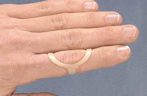 akik a térd artrózisát kezelik ízületek és izmok fájdalomcsillapítóinak listája