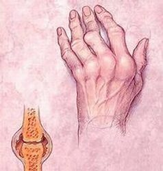 synovitis vagy az ízületi membrán gyulladása