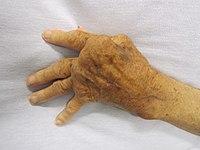 ízületi ízületi kezelés dimexidummal a prediabetikus ízületek fájnak