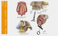 texamen az ízületi fájdalomra)