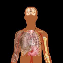 kötőszöveti diszplázia homeopátia kezelés ízületi összehúzódási betegség