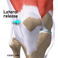 térd patellofemoralis artrózisa 3 fokos kezelés