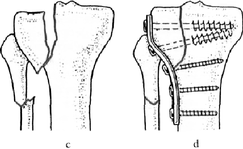 térd sérülés esetén kötést kell felvinni)