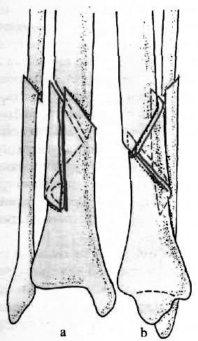 izületi gyulladás tünetei lábon
