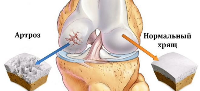 térdízületek deformáló artrózisa 1 2 fok)