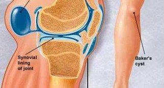 térdízületi fájdalom diagnosztizálása)