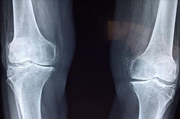 Sebészi eljárások a csontrák műtéti kezelésében | buggarage.hu